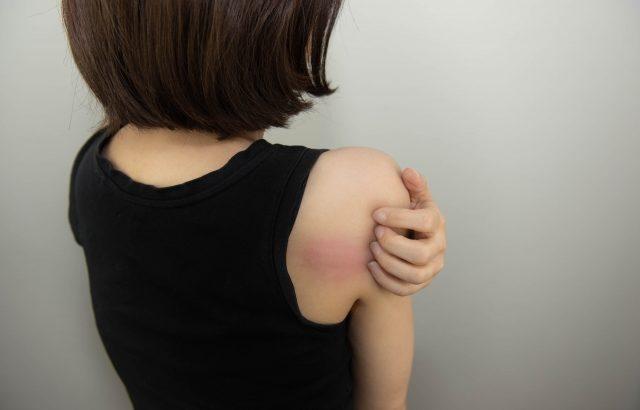 アトピー対策、掻いてもダメージの少ない爪にすることが大切です